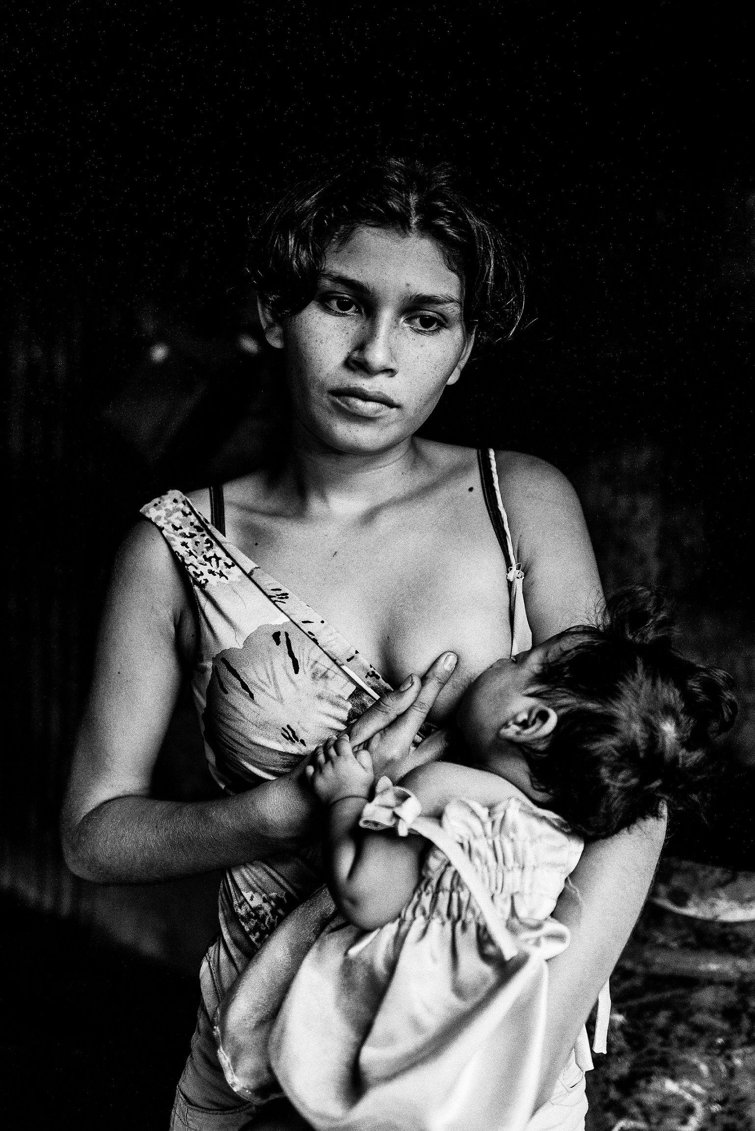 Portrét ( V Nikaragui jsou děti matkami)  Těhotná děvčata reprodukují cyklus chudoby, protože se staly matkami předtím, než se staly biologicky zralými. Trpí chronickou podvýživou a rodí se jim děti snízkou porodní hmotností. 47 procent znich jsou teenageři bez základního vzdělání.