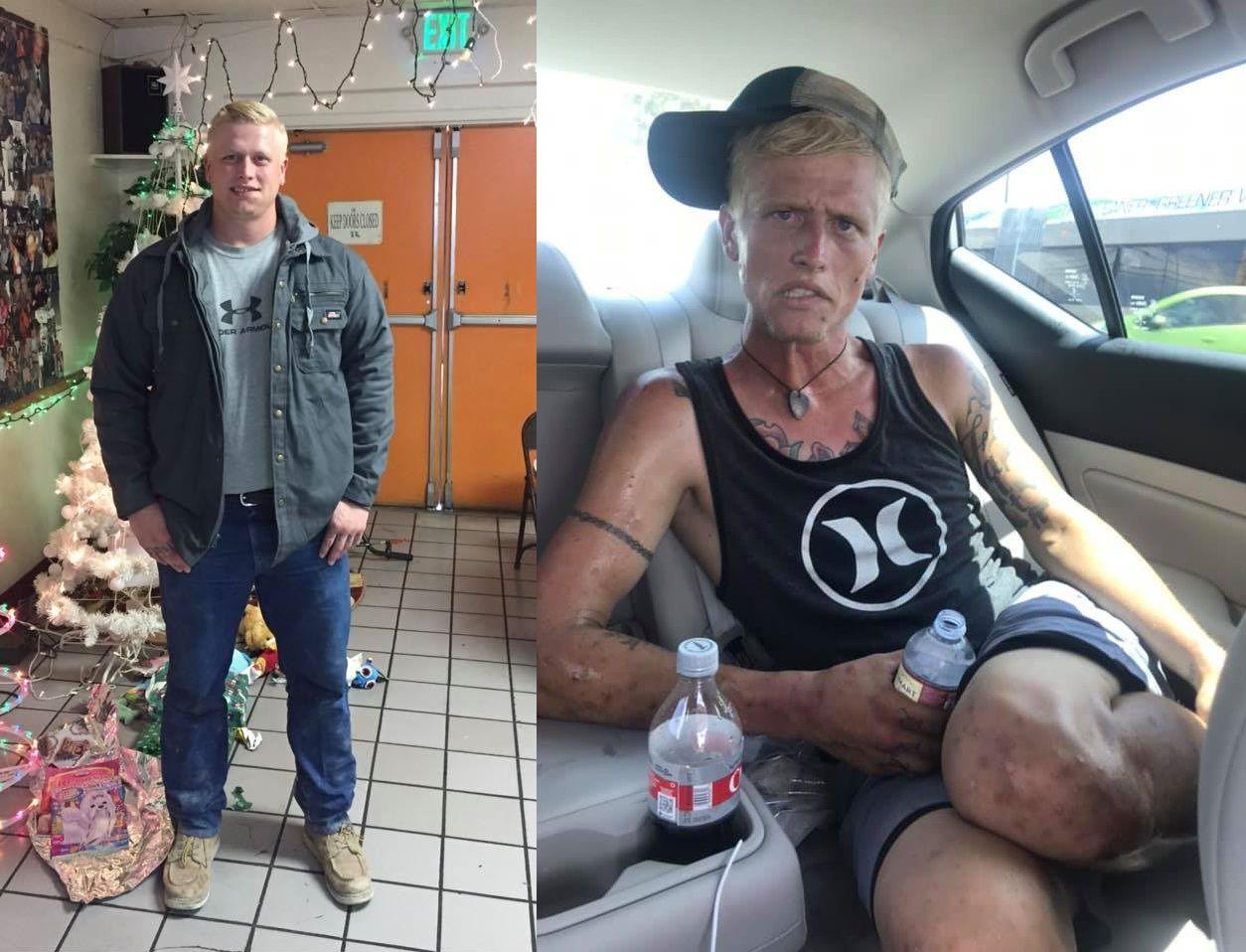 """Zúfala mama na Facebooku zdieľala fotky jej drogovo závislého syna, ktoré sama popisuje ako """"tvár heroínu a pervitínu"""""""