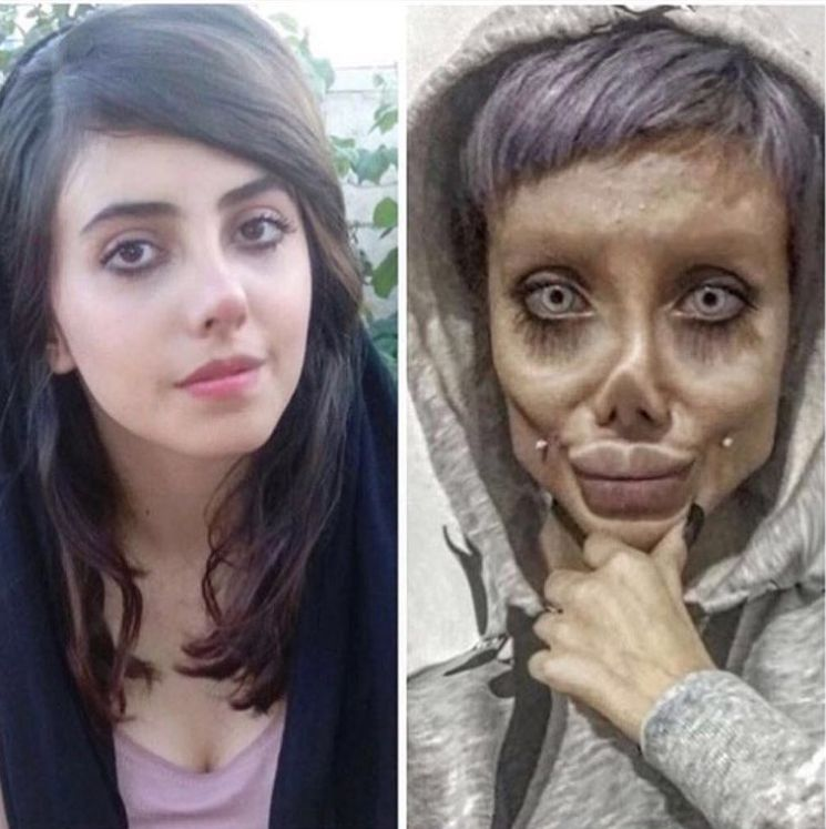 Žena, ktorá tvrdila, že podstúpila 50 plastických operácií, aby vyzerala ako Angelina Jolie kvôli tomu teraz čelí obvineniam