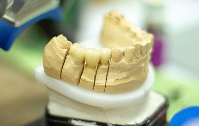 pacientovi udajne vytrhli nespravny zub