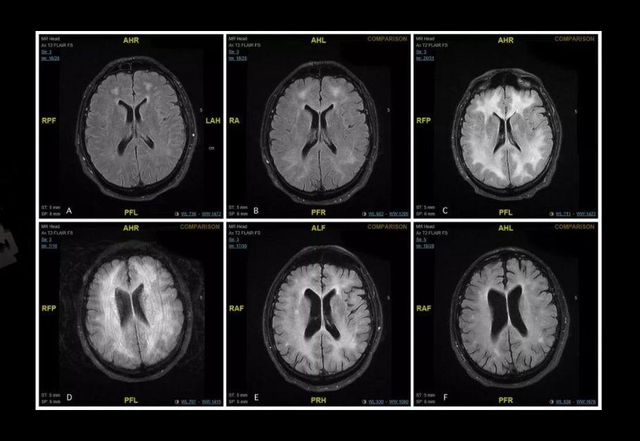 Takto môže vyzerať mozog po dlhodobom užívaní kokaínu