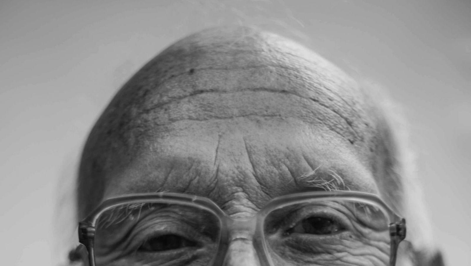 Vedci odprezentovali veľmi nádejný liek na boj s plešatosťou