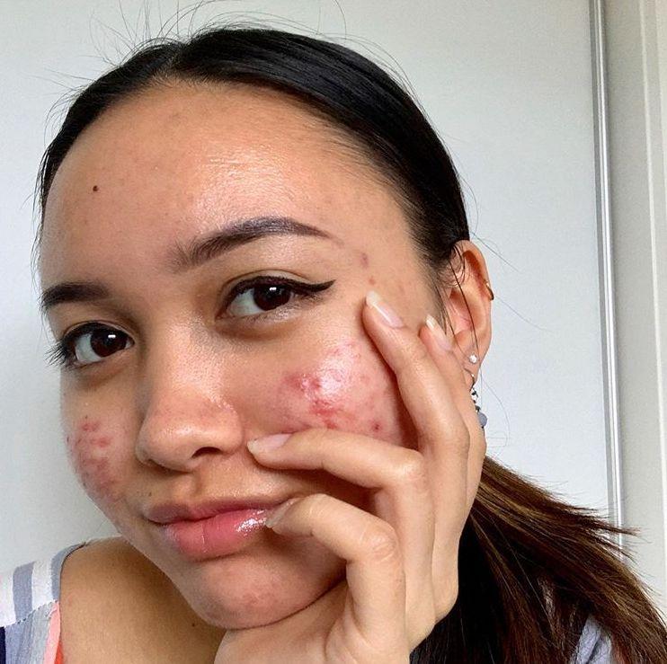 5 najväčších mýtov o akné: Je možné, že z neho nevyrastieš a nie je pravda, že si vyrážky nikdy nemôžeš vytlačiť