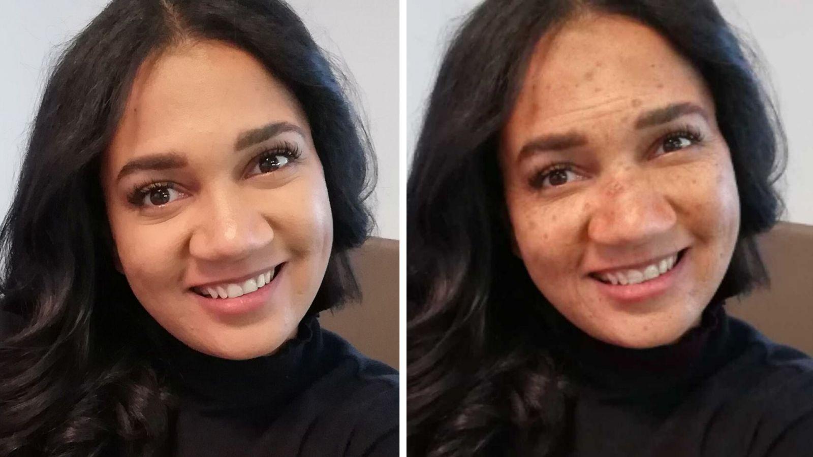 Takto budeš vyzerať, ak používaš opaľovací krém len na dovolenke: Dermatologička vysvetľuje, prečo ti SPF doslova zachráni kožu